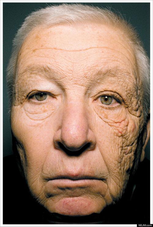 Sun Damage - Bill McElligott